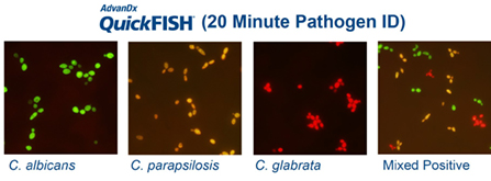 QuickFISH test results - Candida