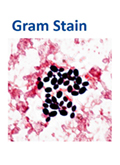 Gram Stain - Candida